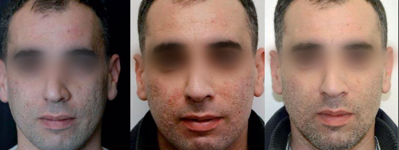 Acne-scars-pre-Bonizzoni-MD