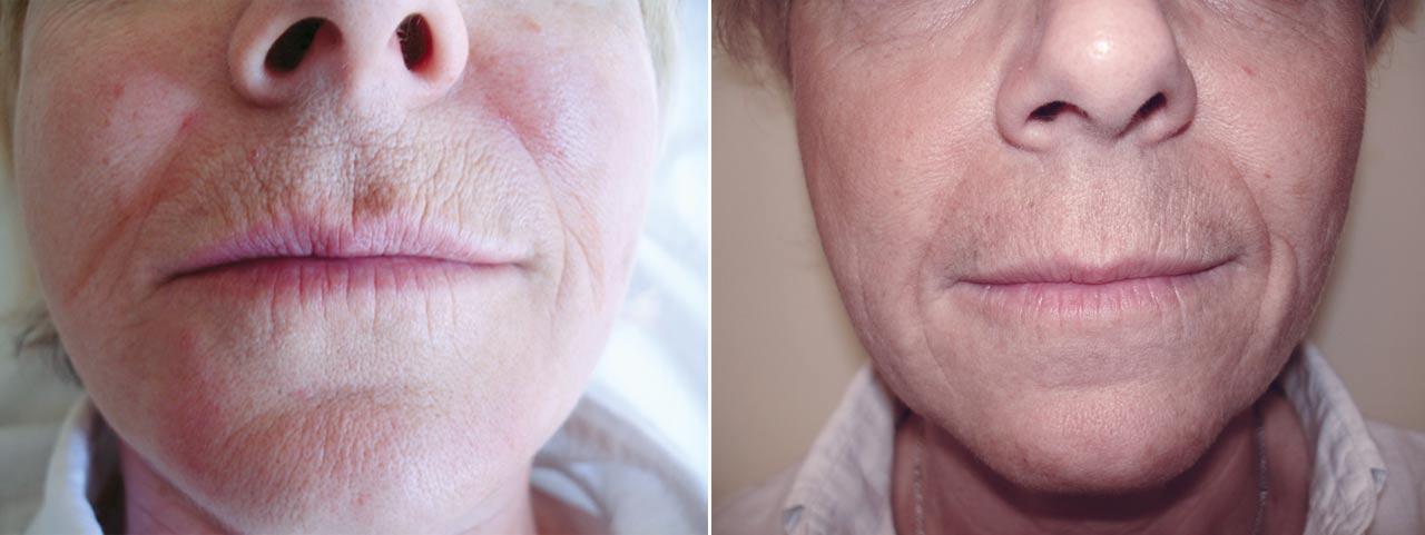 Skin-resurfacing-pre-Sbano-MD