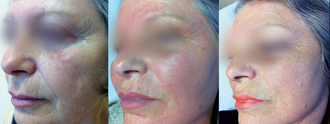 Wrinkles-pre-Sbano-MD
